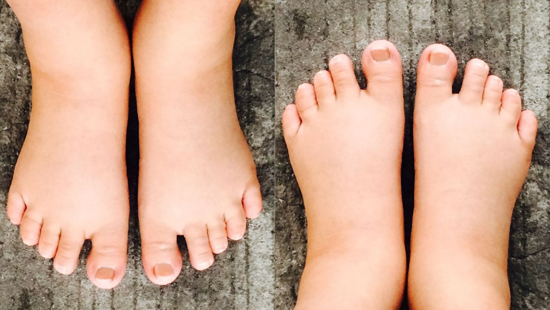Figyeld ezt a három jelet a lábadon! Komoly betegséget jelzhetnek!