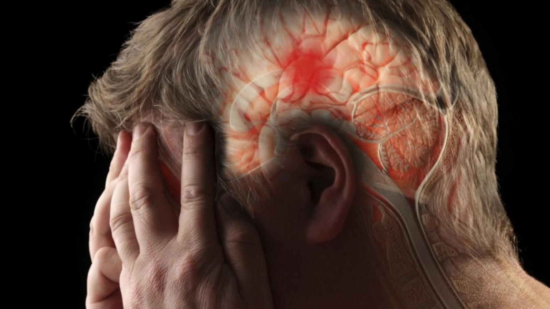 Kevesen tudják, hogy ezek növelik a stroke kialakulásának esélyét